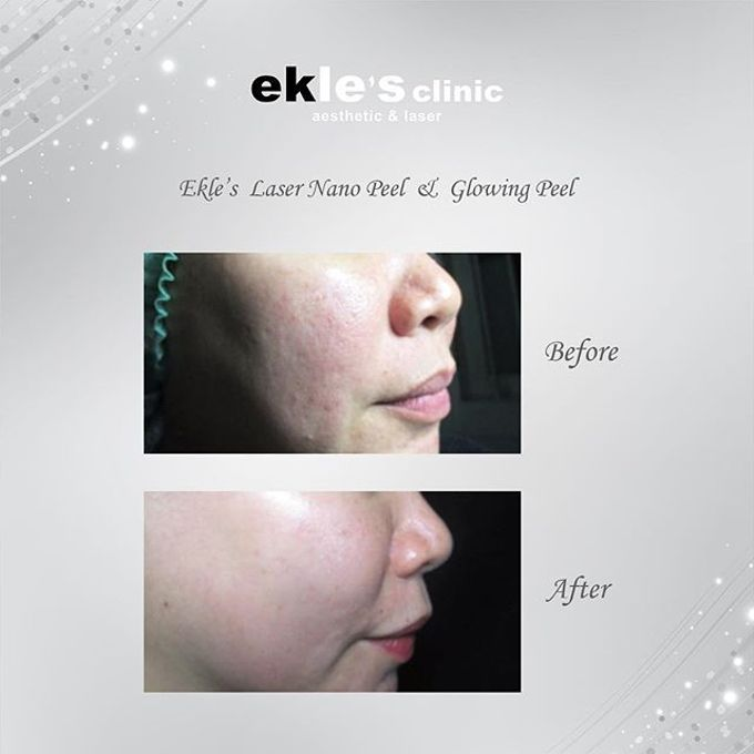 Before & After  by Ekle's Clinic Aesthetic & Laser - 003