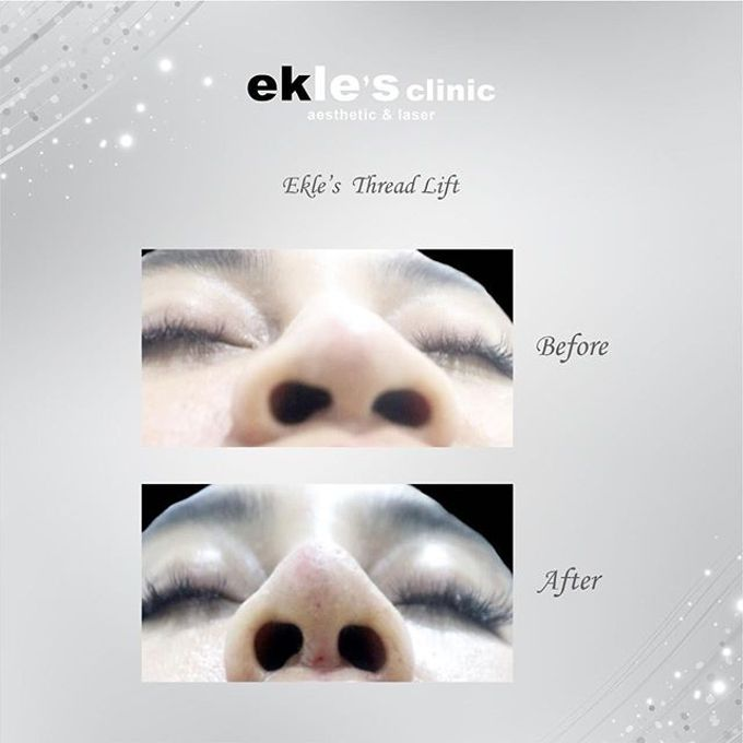 Before & After  by Ekle's Clinic Aesthetic & Laser - 004