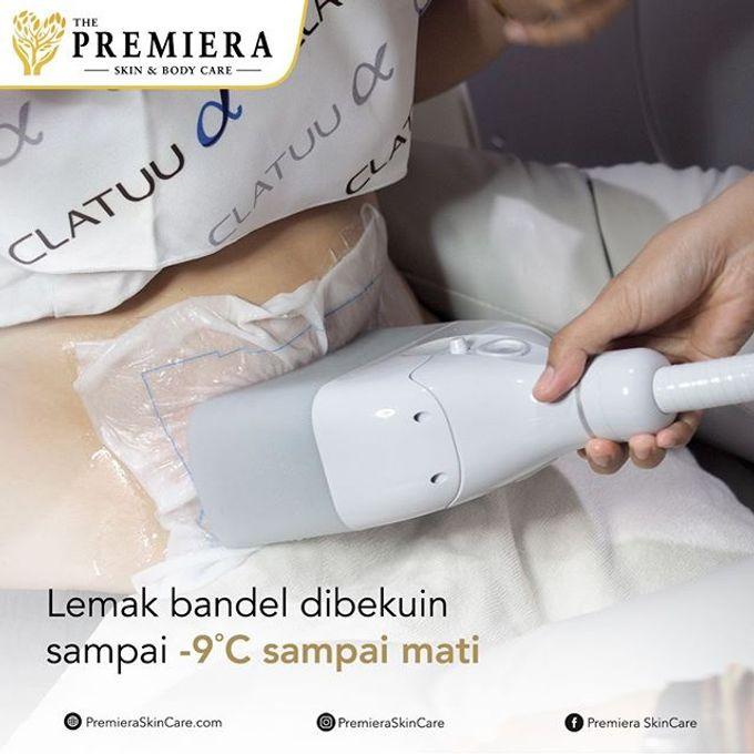 PREMIER Fat Freeze360 by Premiera Skincare - 010