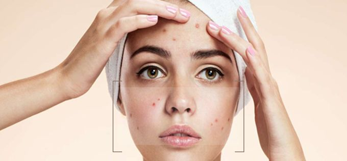 acne program by BMDERMA Clinic - 001