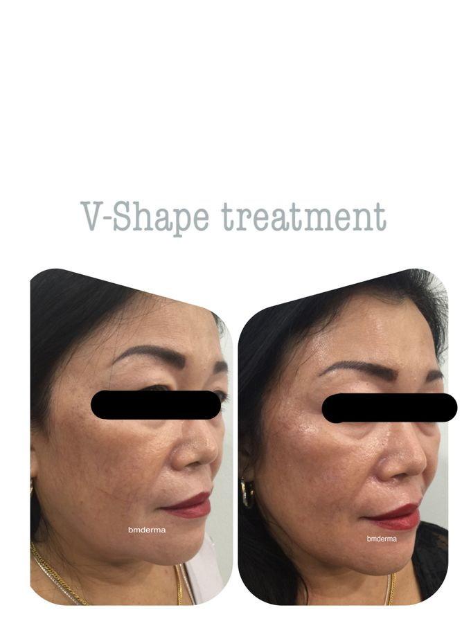 3D Face contouring by BMDERMA Clinic - 005