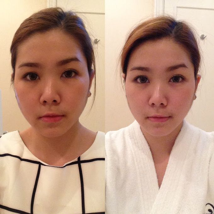 Satisfied Costumers by OYA Clinics - 007