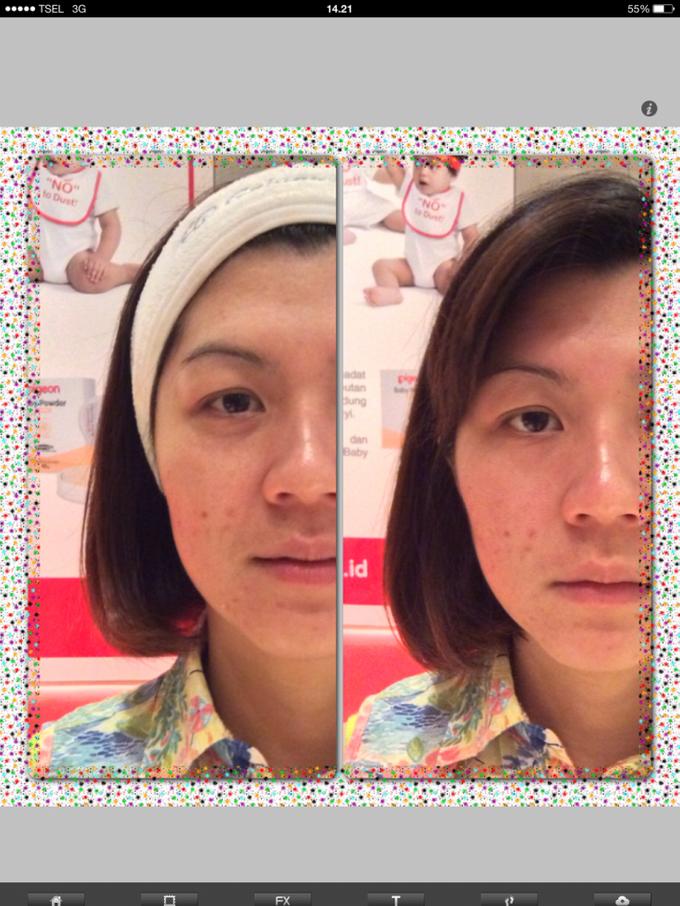 Skin Rejuvenation System by New You - 001