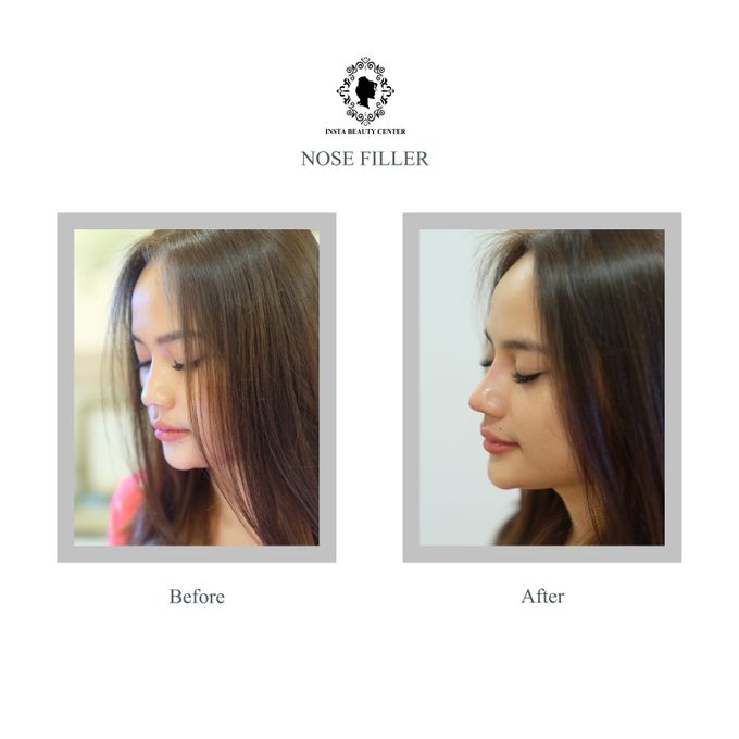 Hasil Before After by INSTA BEAUTY CENTER - 001