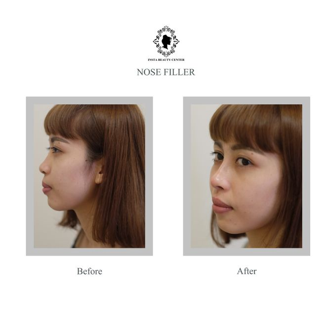 Hasil Before After by INSTA BEAUTY CENTER - 002
