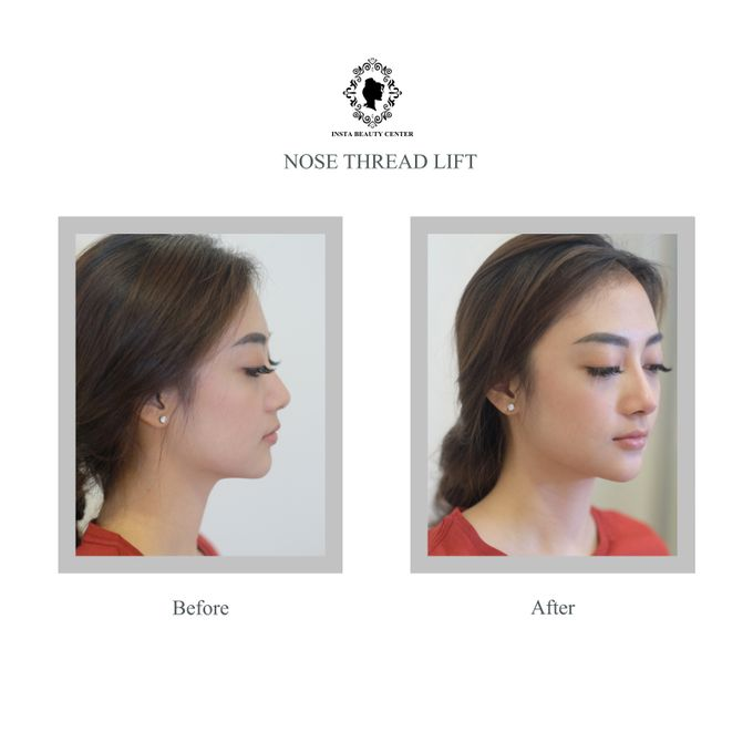 Hasil Before After by INSTA BEAUTY CENTER - 003