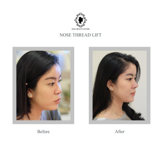 Hasil Before After by INSTA BEAUTY CENTER - 004