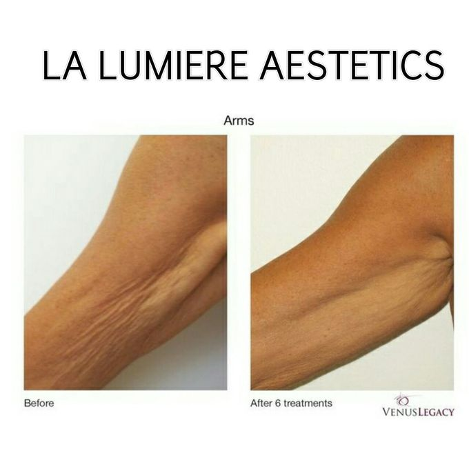 VENUS LEGACY by la lumiere aesthetics - 006