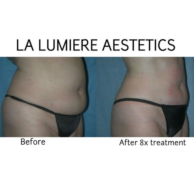 Exillis Ultra 360 by la lumiere aesthetics - 004