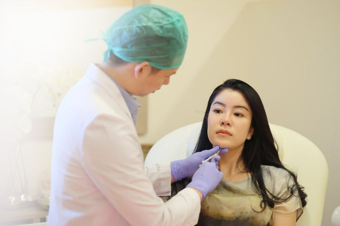Filler - Thread lift and Botox by INSTA BEAUTY CENTER - 008