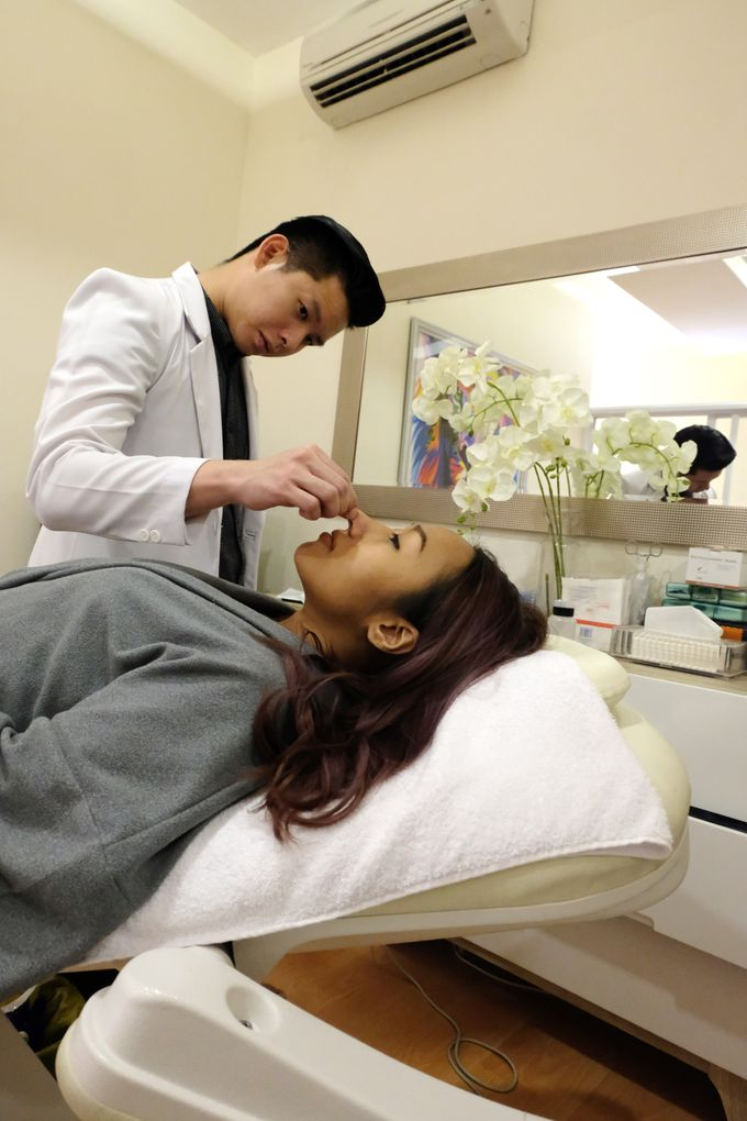Filler - Thread lift and Botox by INSTA BEAUTY CENTER - 006