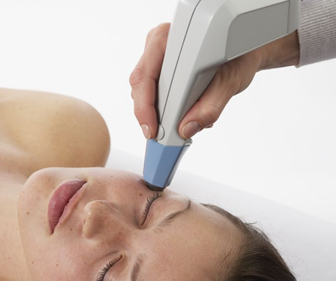Endermo - Exilis Face Treatment by endermo - slimming, anti aging, spa - 001