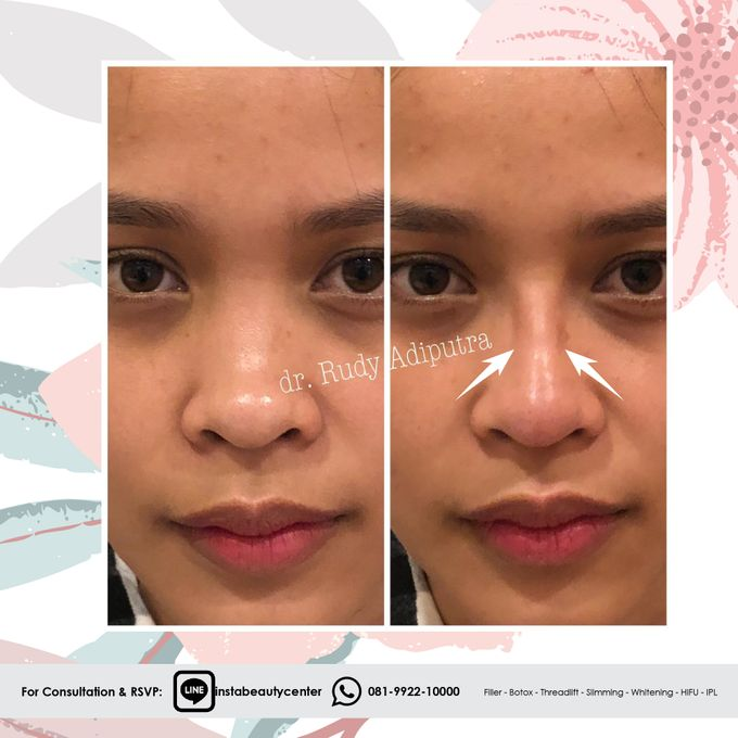 Hasil Before After by INSTA BEAUTY CENTER - 008