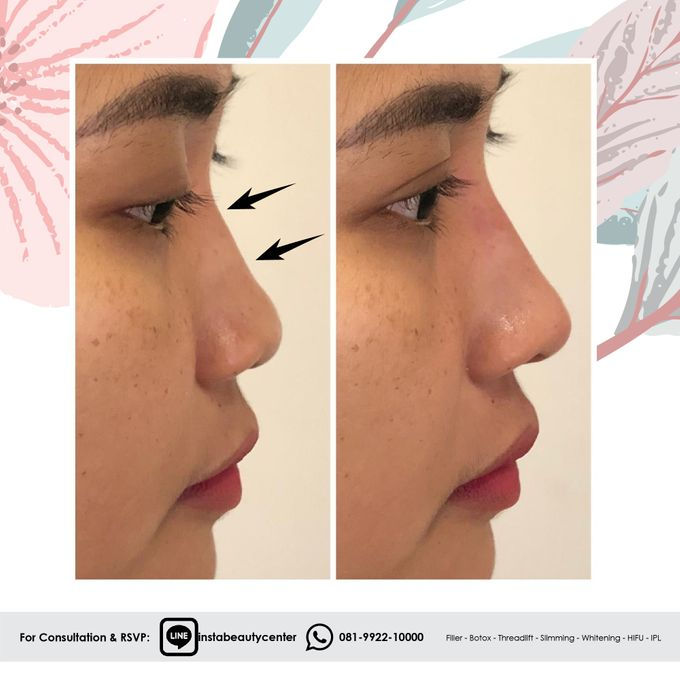 Hasil Before After by INSTA BEAUTY CENTER - 009