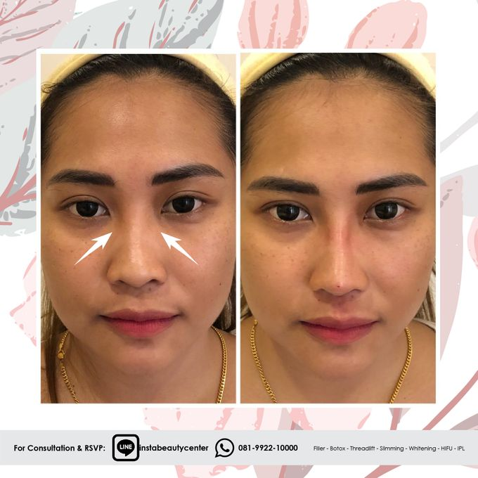 Hasil Before After by INSTA BEAUTY CENTER - 010