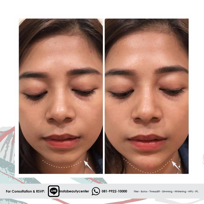 Hasil Before After by INSTA BEAUTY CENTER - 012