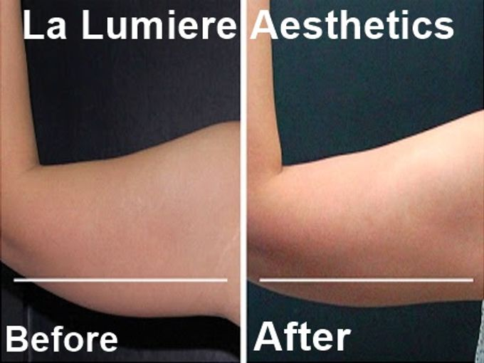 COOLSCULPTING Fat Reduction by la lumiere aesthetics - 003