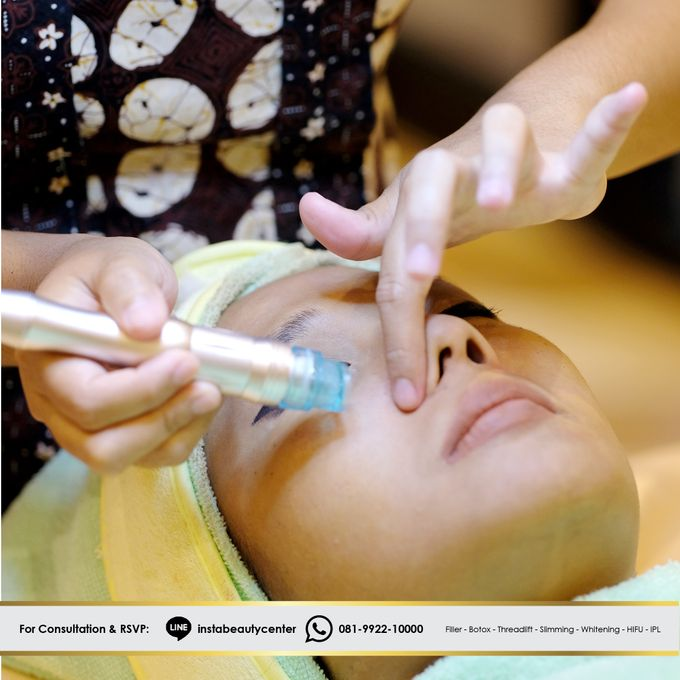Face Treatment by INSTA BEAUTY CENTER - 006