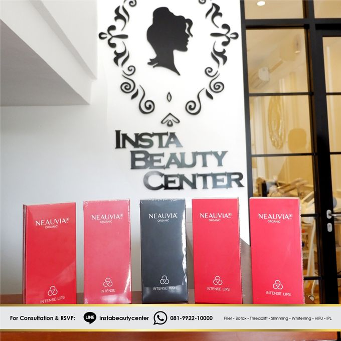 Filler - Thread lift and Botox by INSTA BEAUTY CENTER - 010