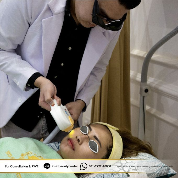 Face Treatment by INSTA BEAUTY CENTER - 009