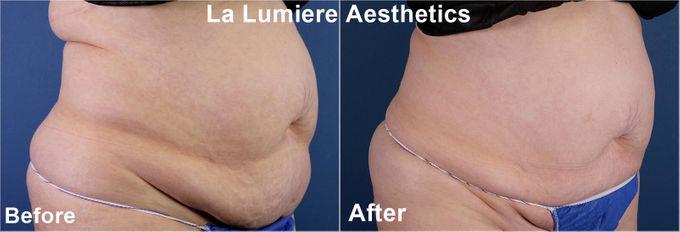 COOLSCULPTING Fat Reduction by la lumiere aesthetics - 005