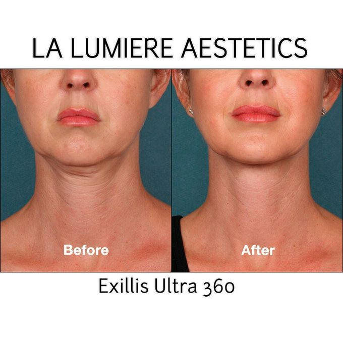 Exillis Ultra 360 by la lumiere aesthetics - 005