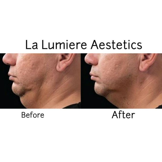 COOLSCULPTING Fat Reduction by la lumiere aesthetics - 002