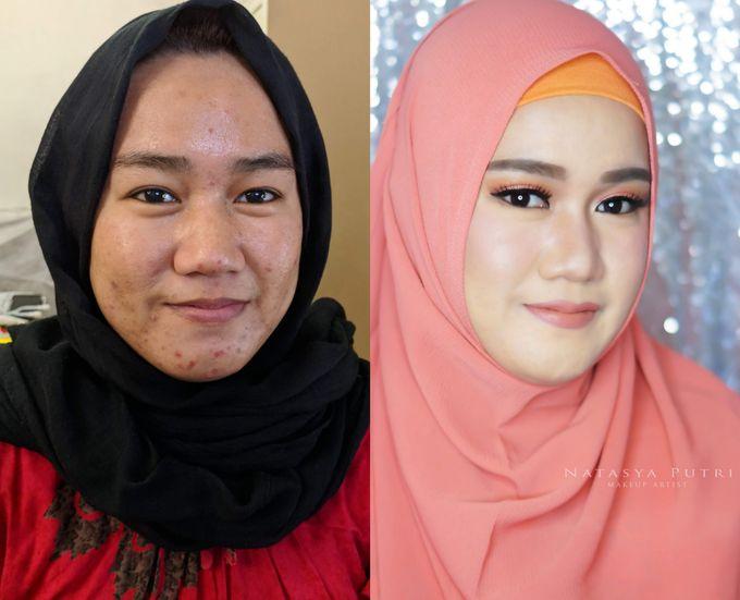 Before And After by Natasya Putri Makeup Artist - 004