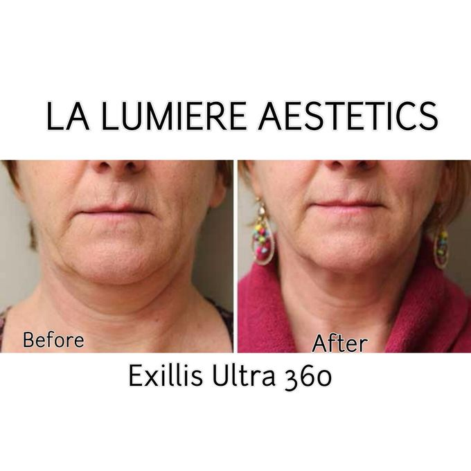 Exillis Ultra 360 by la lumiere aesthetics - 006