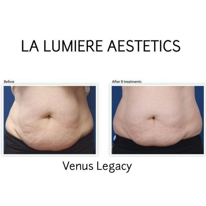 VENUS LEGACY by la lumiere aesthetics - 004