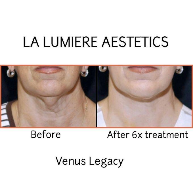 VENUS LEGACY by la lumiere aesthetics - 005