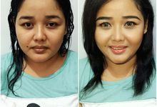Transformation; Before & After  by Mellymo