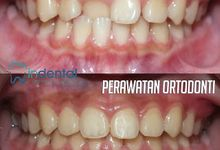 Orthodontic treatment by Indental Clinic
