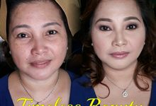 Before And After by Timeless Beauty By: Angela Bautista