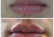 Treatment Wajah by Beautyme Aesthetic Clinic