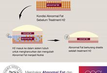 H2 - WEIGHT LOSS SYSTEM by EUROPEAN SLIMMING CENTRE (ESC) & EUROSKINLAB (ESL)