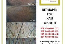 Dermapen by Dermis Skin Specialist
