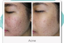FOTO BEFORE AFTER by SKINDA Medical Skin Care & Dermatology Center