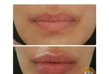 Treatment Wajah by Beautyme Aesthetic Clinic