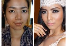 Before - After by NITA GUNAWAN MakeUpArtist