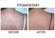 Endermo - Intense Pulse Light by endermo - slimming, anti aging, spa
