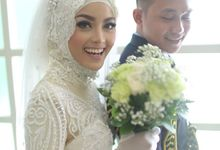 Feby Rendra - Cahyo Prewedding by Indental Clinic