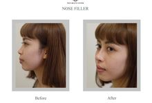 Hasil Before After by INSTA BEAUTY CENTER