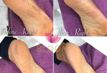 YUMI FEET CALLUS PEELING TREATMENT | PEDICURE by Bloom By Silvany