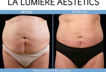 TRIPLE  SLIMMING COMBO TREATMENT by la lumiere aesthetics