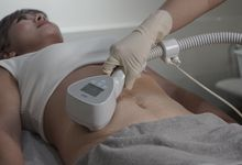 Exilis Ultra Body Slimming and Tightening by The Beaute Aesthetic
