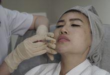 Filler dan Botox by The Beaute Aesthetic