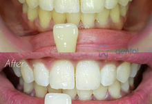 Cosmetic Dental Contouring by Indental Clinic