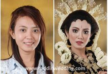 Before-After by Raddin Wedding