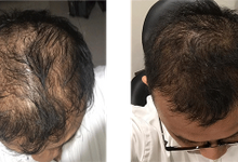 PREMIER Growth Factor For Hair by Premiera Skincare